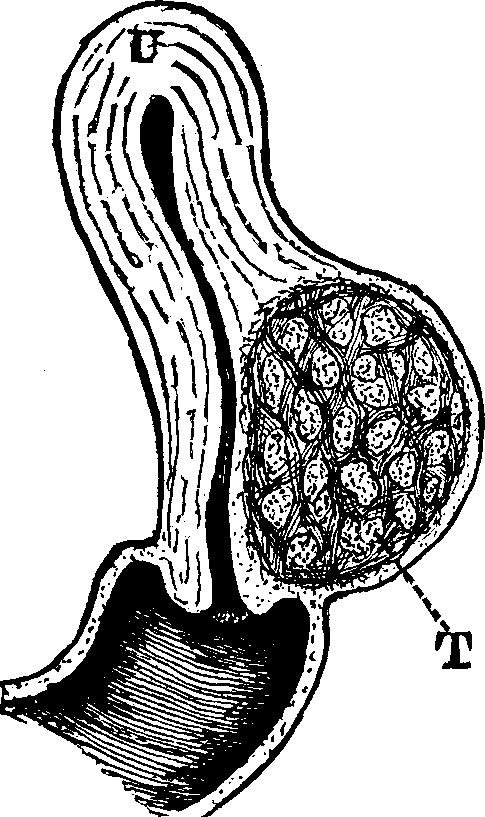 Illustration: Fig. 19. U, Uterus. T, Tumor.