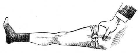 Fig. V.