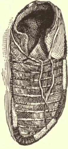 Illustration.