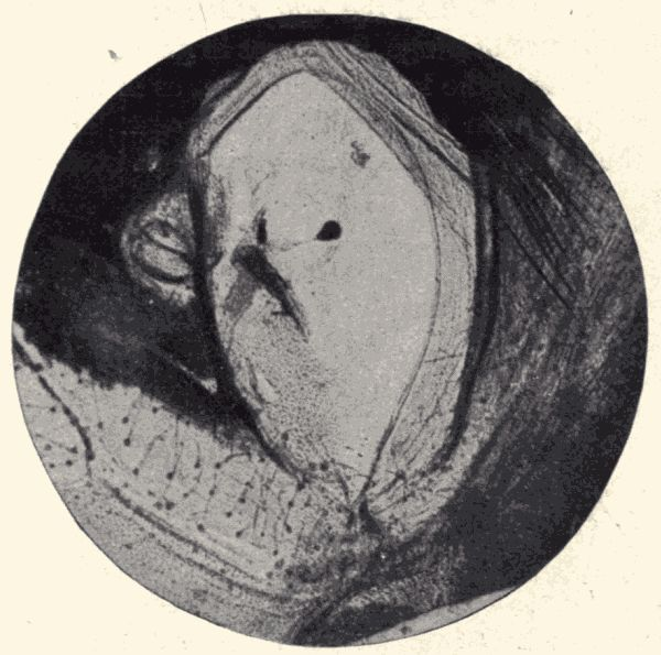 ea074daa3ab The auditory organ of a locust.